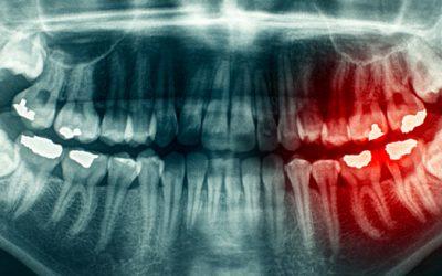 Cómo curar una periodontitis