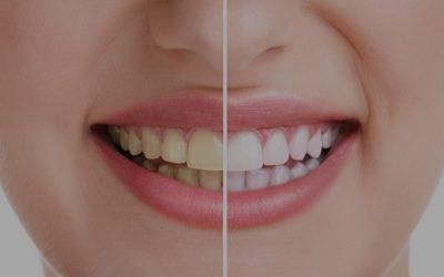 ¿Manchas en los dientes? 7 causas por las que aparecen