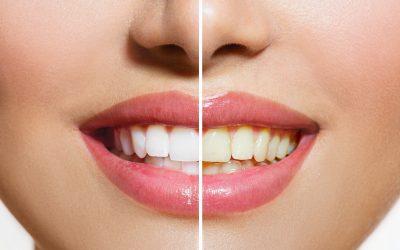 ¿Cómo son los dientes de un fumador? Tabaco y salud dental